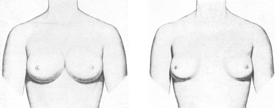 wide apart boobs