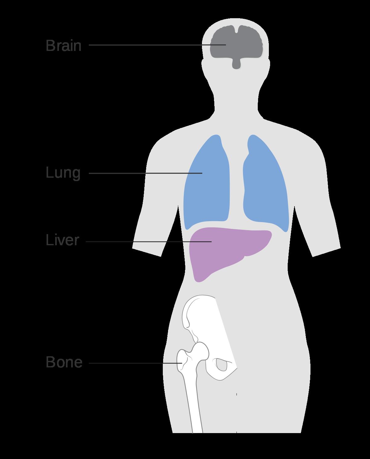 treatment feeding breast vertigo