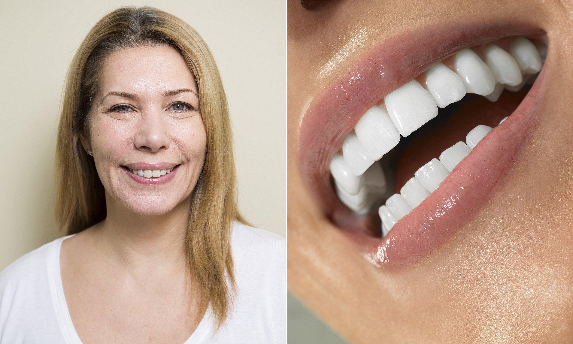 teeth white sexy celebrity