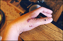 thumb ligament surgery