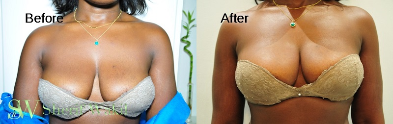 lift nonsurgical breast