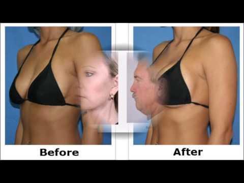 in breast augmentation houston